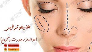 شرکت فروش تجهیزات زیبایی پوست آروینیا